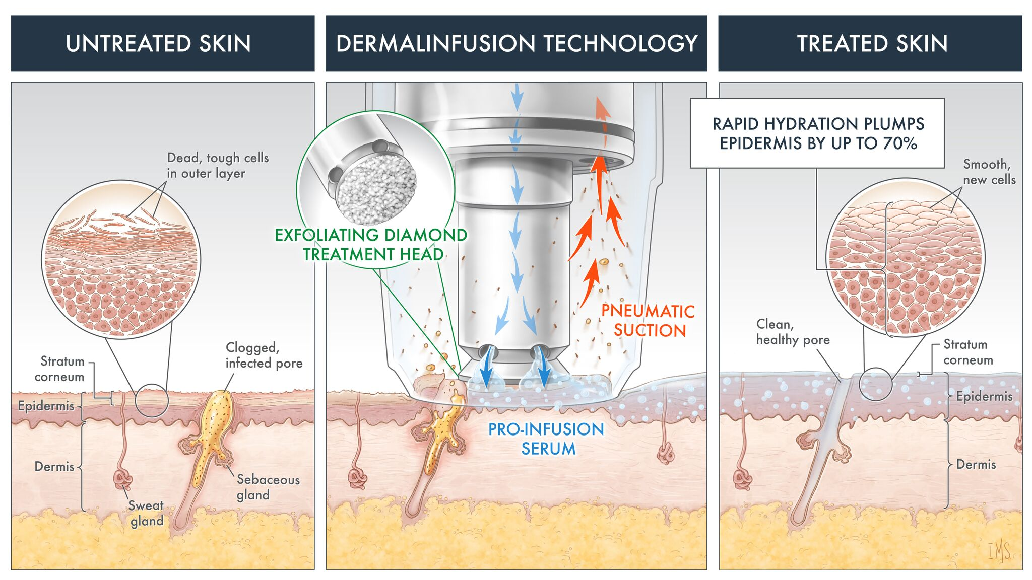 dermal-technology
